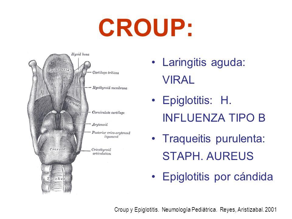 CROUP: Laringitis aguda: VIRAL Epiglotitis: H. INFLUENZA TIPO B