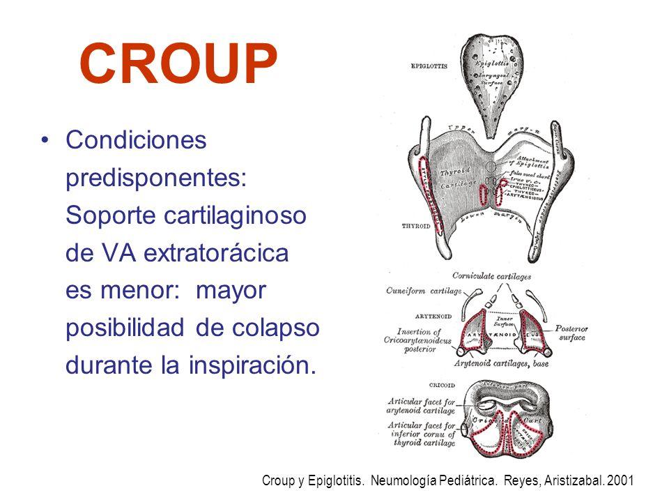 CROUP Condiciones predisponentes: Soporte cartilaginoso de VA extratorácica es menor: mayor posibilidad de colapso durante la inspiración.