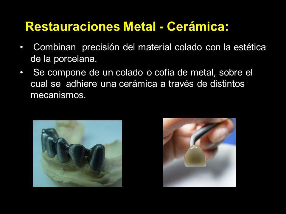 Restauraciones Metal - Cerámica: