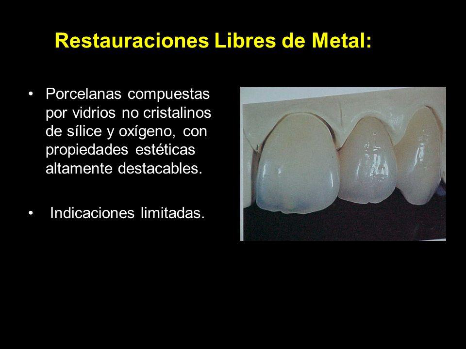 Restauraciones Libres de Metal: