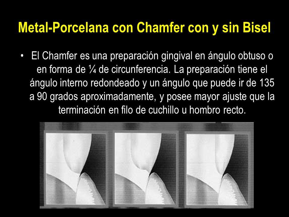 Metal-Porcelana con Chamfer con y sin Bisel