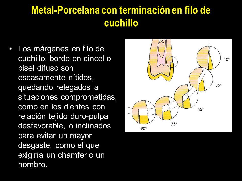 Metal-Porcelana con terminación en filo de cuchillo