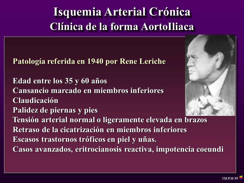 Isquemia Arterial Crónica Clínica de la forma AortoIliaca