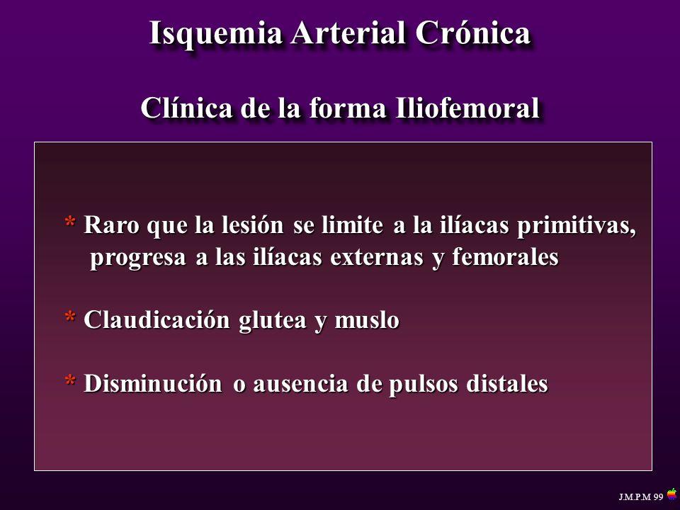 Isquemia Arterial Crónica Clínica de la forma Iliofemoral