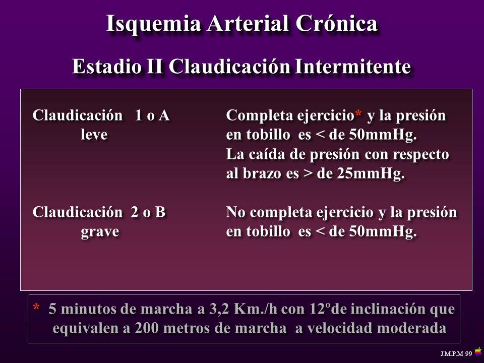 Isquemia Arterial Crónica Estadio II Claudicación Intermitente