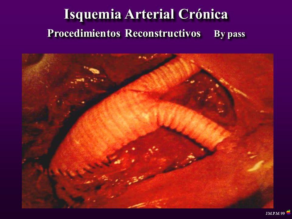 Isquemia Arterial Crónica Procedimientos Reconstructivos By pass