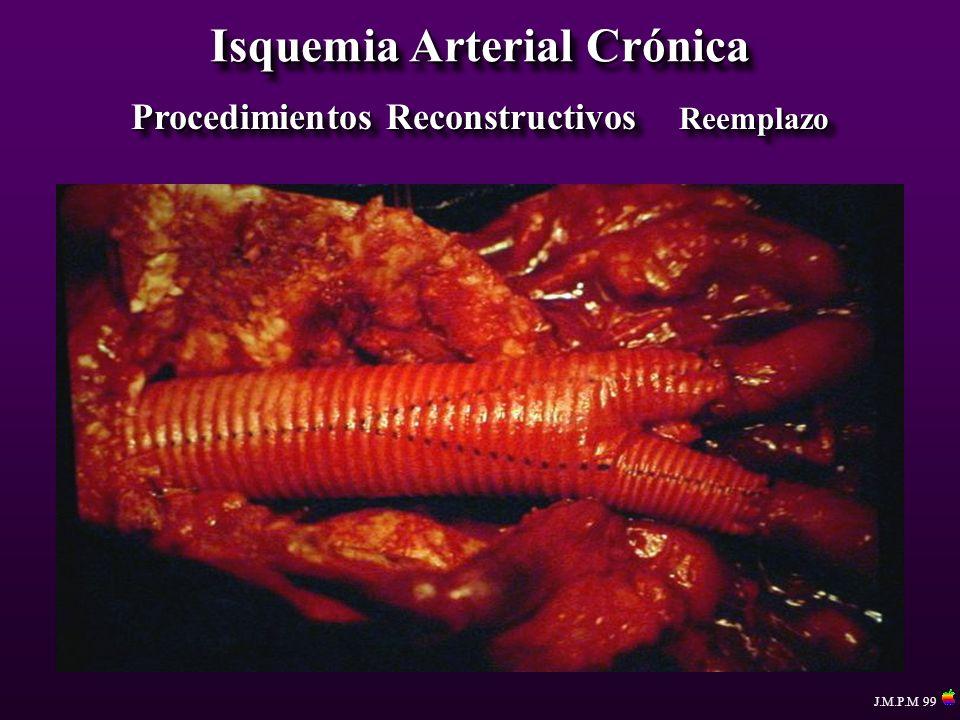 Isquemia Arterial Crónica Procedimientos Reconstructivos Reemplazo