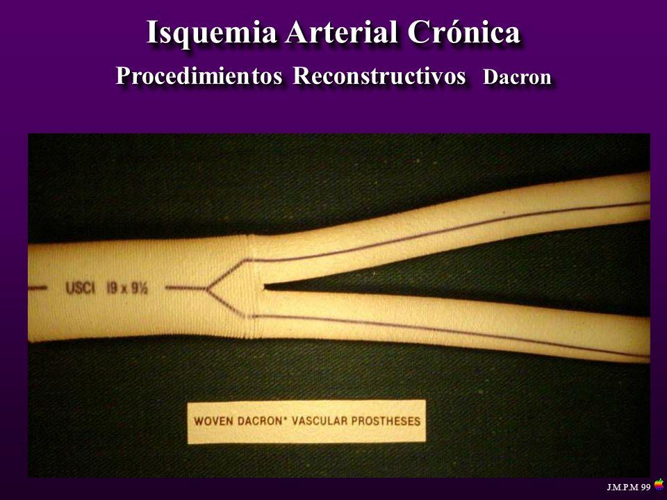 Isquemia Arterial Crónica Procedimientos Reconstructivos Dacron