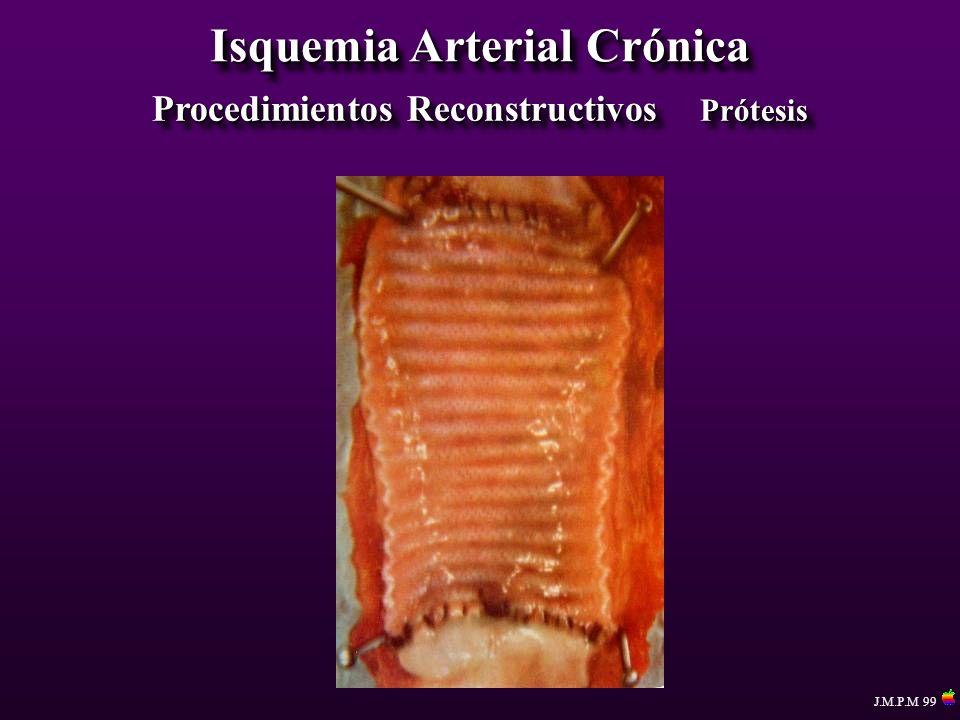 Isquemia Arterial Crónica Procedimientos Reconstructivos Prótesis