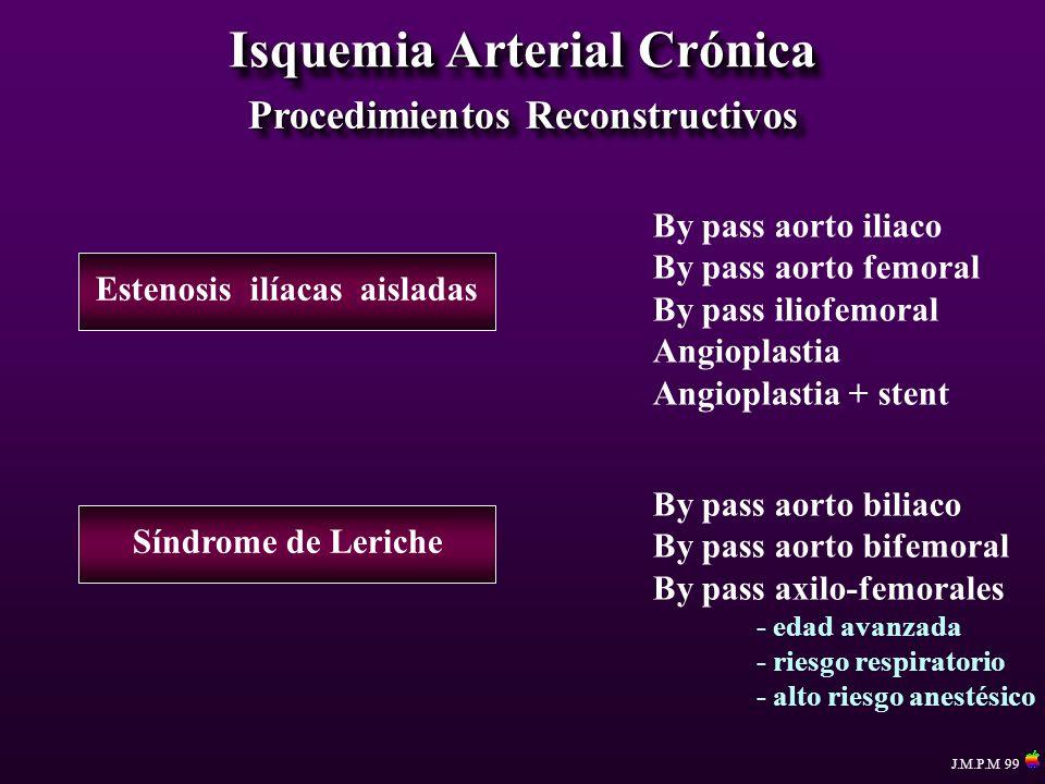 Isquemia Arterial Crónica Procedimientos Reconstructivos
