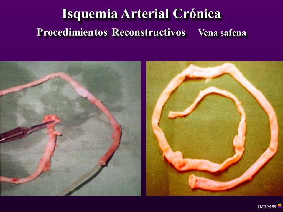 Isquemia Arterial Crónica Procedimientos Reconstructivos Vena safena
