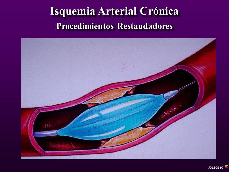 Isquemia Arterial Crónica Procedimientos Restaudadores