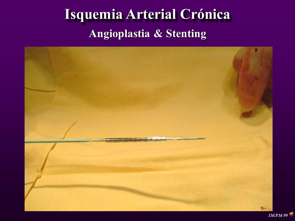 Isquemia Arterial Crónica Angioplastia & Stenting