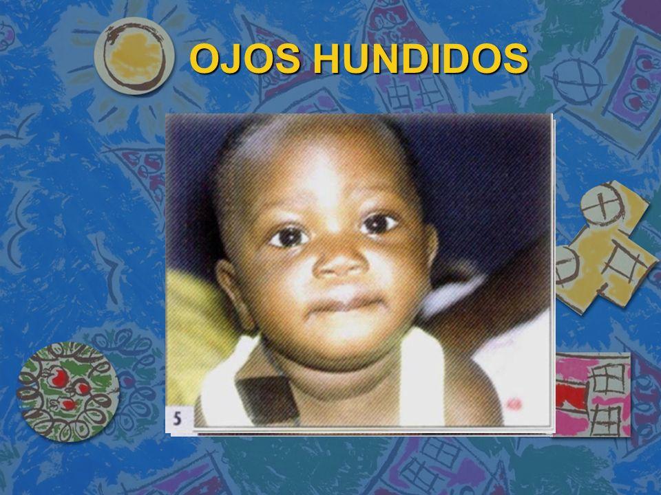 OJOS HUNDIDOS