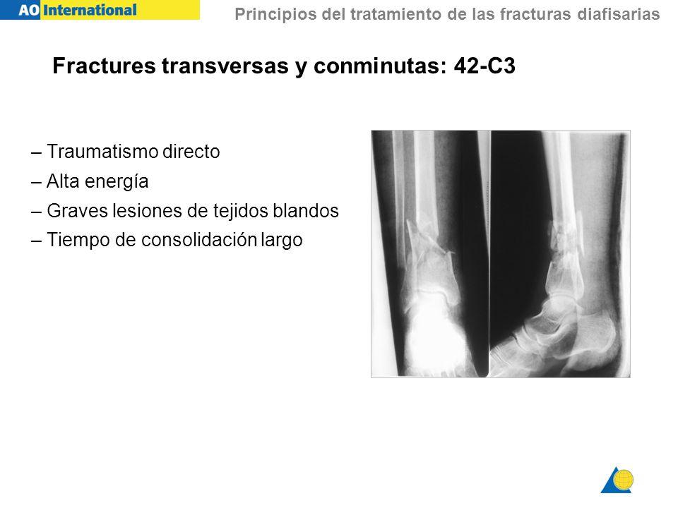 Fractures transversas y conminutas: 42-C3