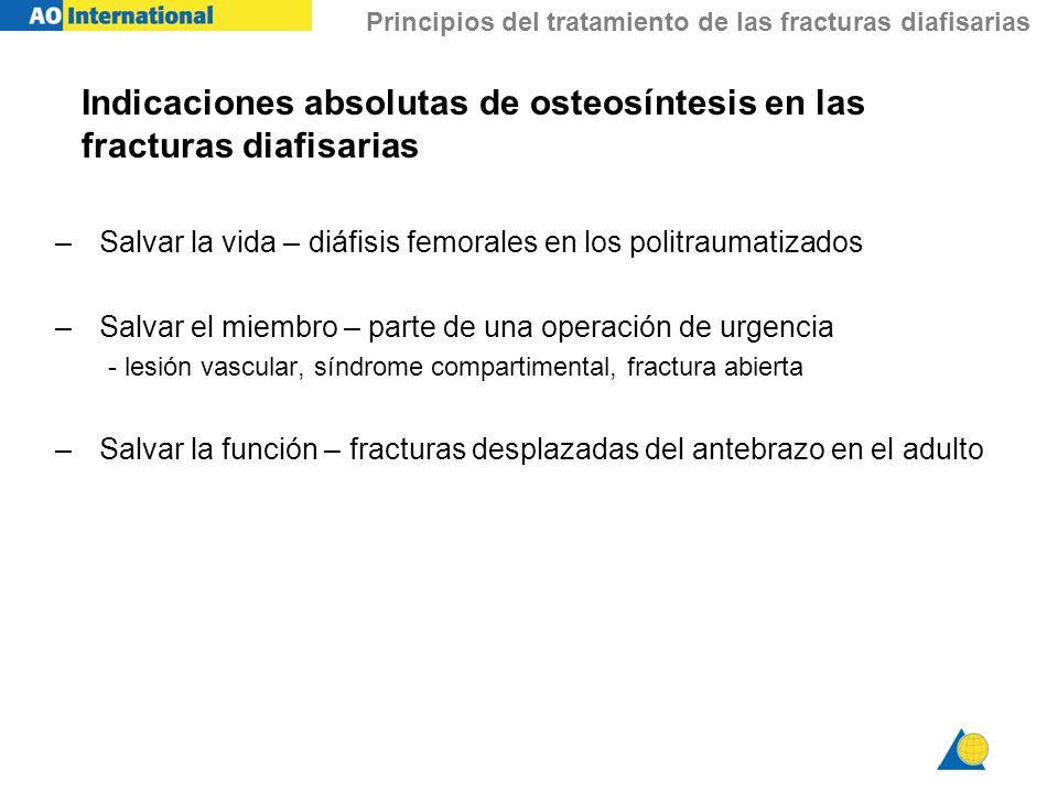 Indicaciones absolutas de osteosíntesis en las fracturas diafisarias