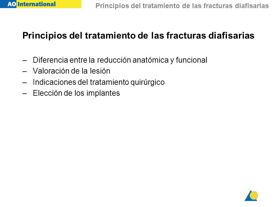 Principios del tratamiento de las fracturas diafisarias