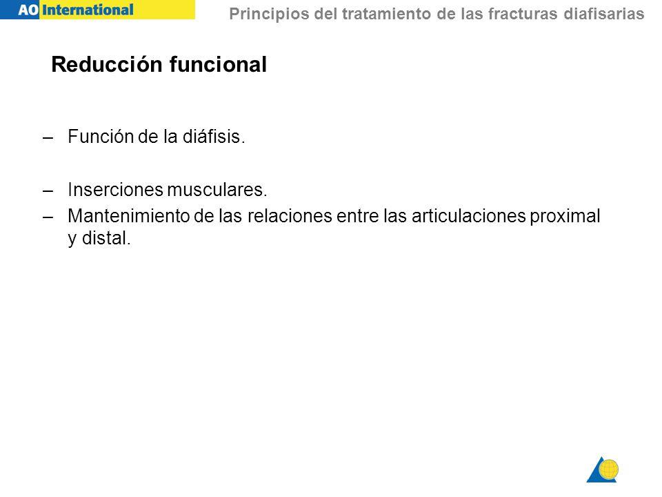 Reducción funcional Función de la diáfisis. Inserciones musculares.