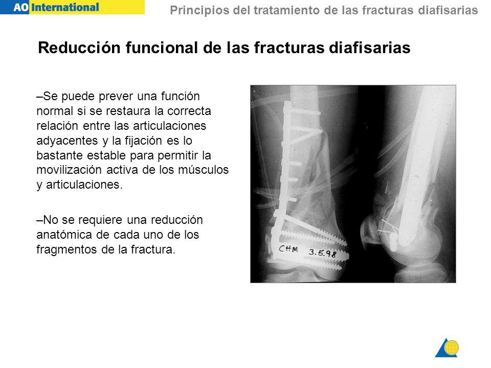 Reducción funcional de las fracturas diafisarias
