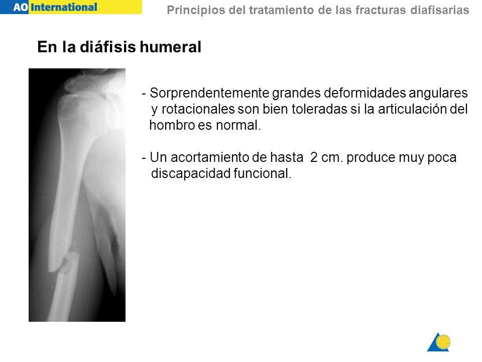 En la diáfisis humeral- Sorprendentemente grandes deformidades angulares. y rotacionales son bien toleradas si la articulación del.