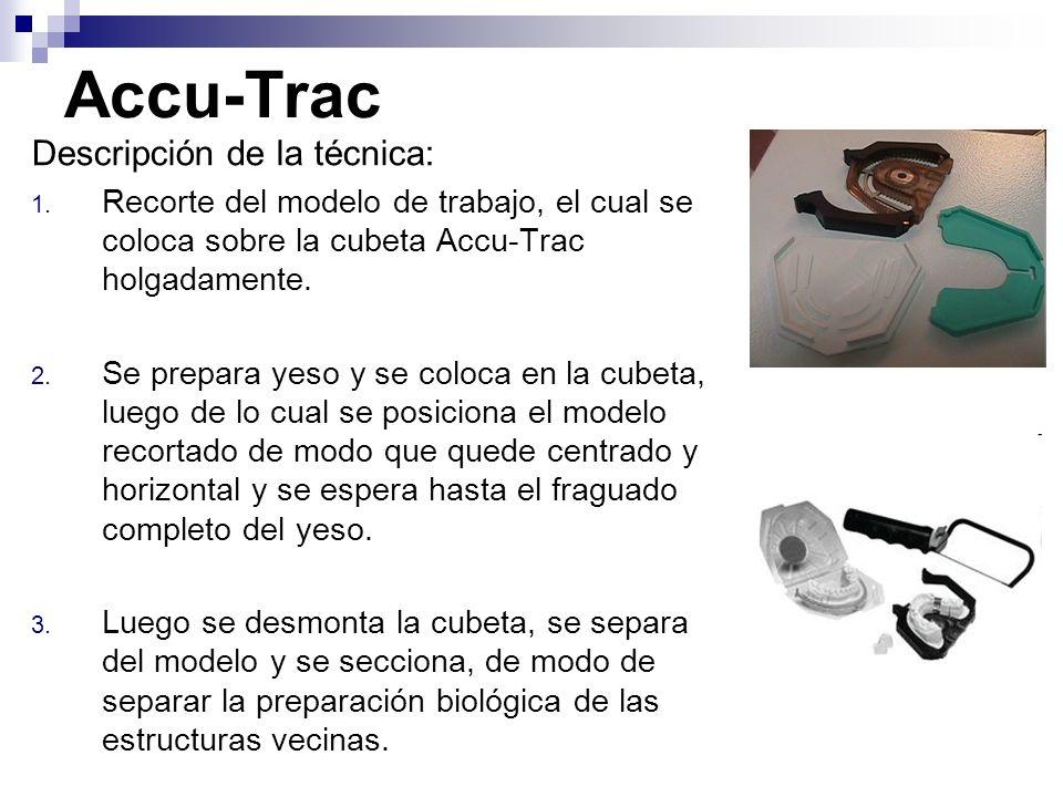 Accu-Trac Descripción de la técnica: