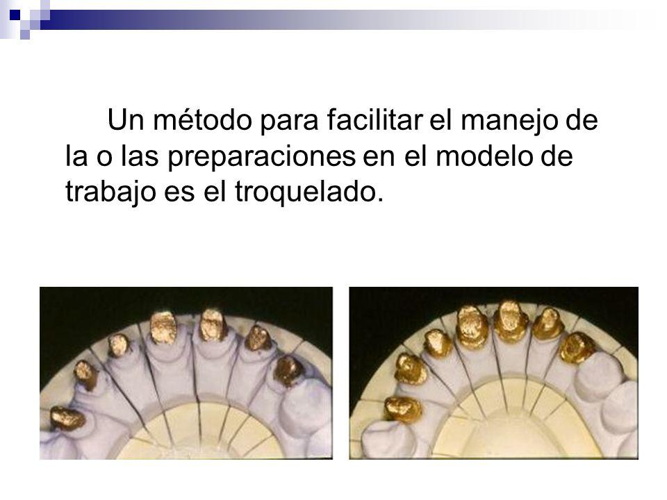 Un método para facilitar el manejo de la o las preparaciones en el modelo de trabajo es el troquelado.