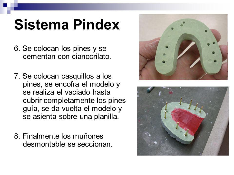 Sistema Pindex 6. Se colocan los pines y se cementan con cianocrilato.