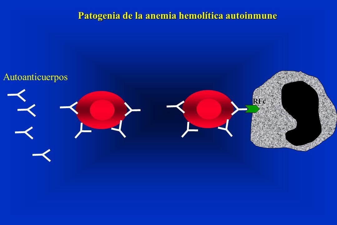 Patogenia de la anemia hemolítica autoinmune