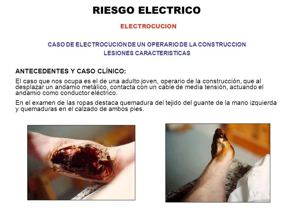 RIESGO ELECTRICO ELECTROCUCION ANTECEDENTES Y CASO CLÍNICO: