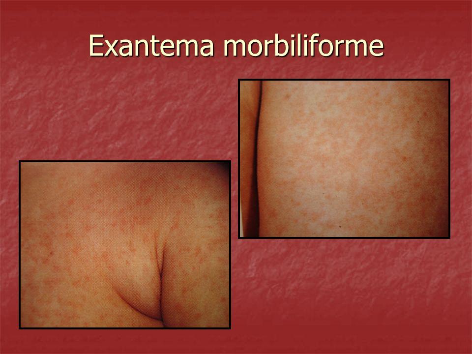 Exantema morbiliforme