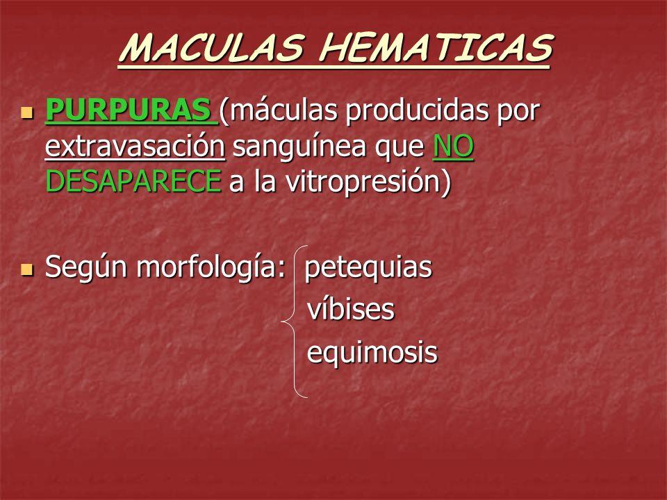 MACULAS HEMATICAS PURPURAS (máculas producidas por extravasación sanguínea que NO DESAPARECE a la vitropresión)
