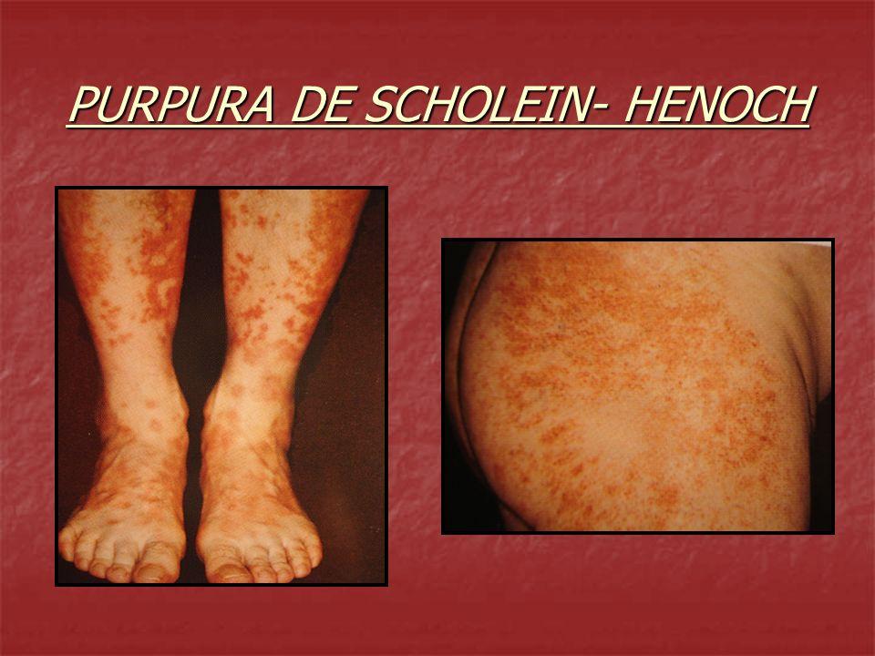 PURPURA DE SCHOLEIN- HENOCH
