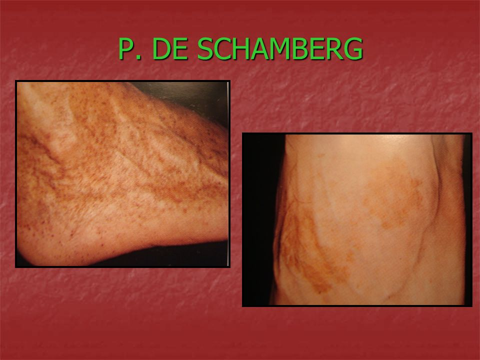 P. DE SCHAMBERG