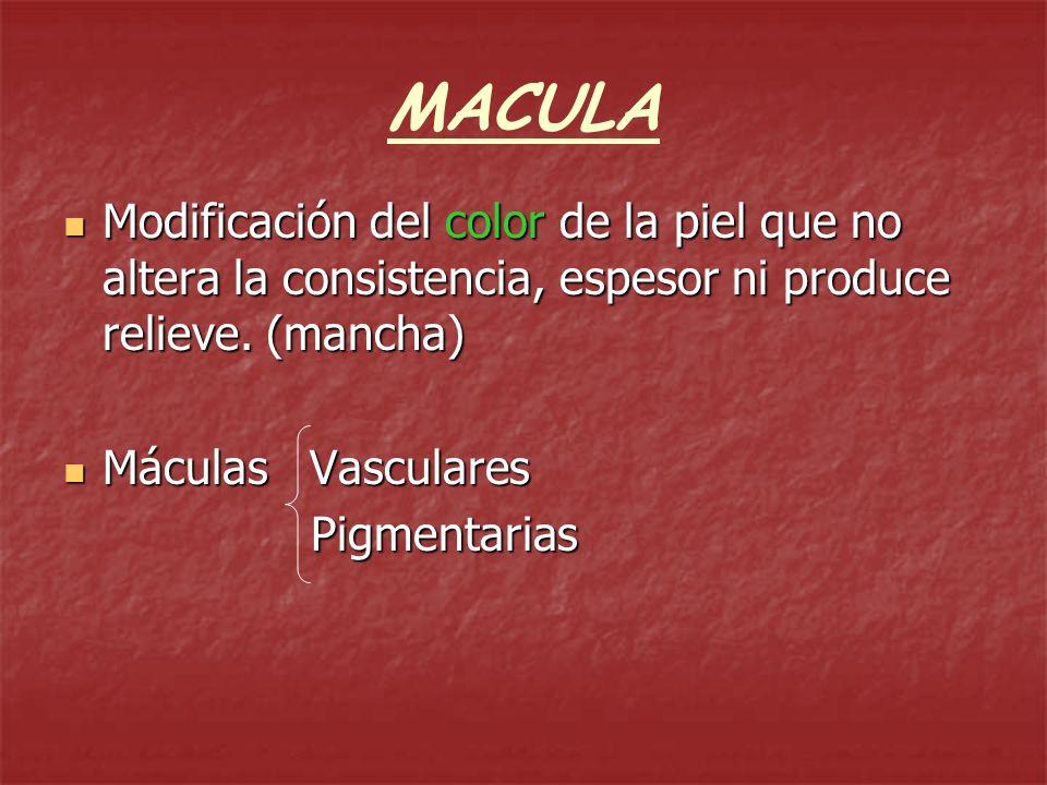 MACULAModificación del color de la piel que no altera la consistencia, espesor ni produce relieve. (mancha)