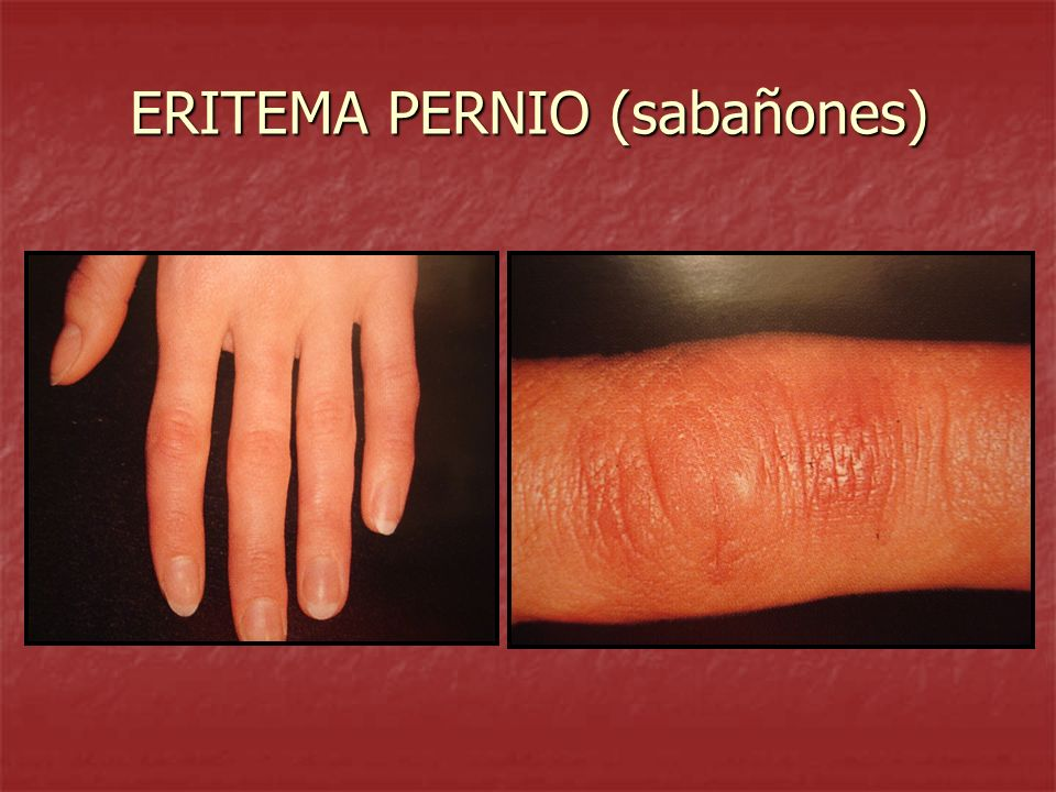 ERITEMA PERNIO (sabañones)