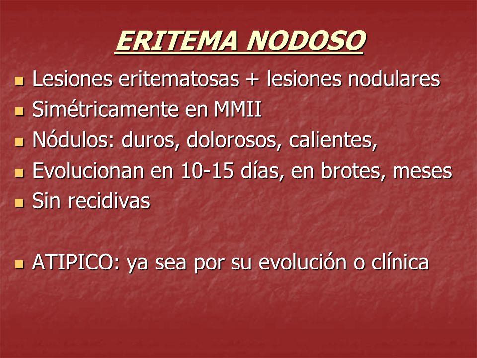 ERITEMA NODOSO Lesiones eritematosas + lesiones nodulares
