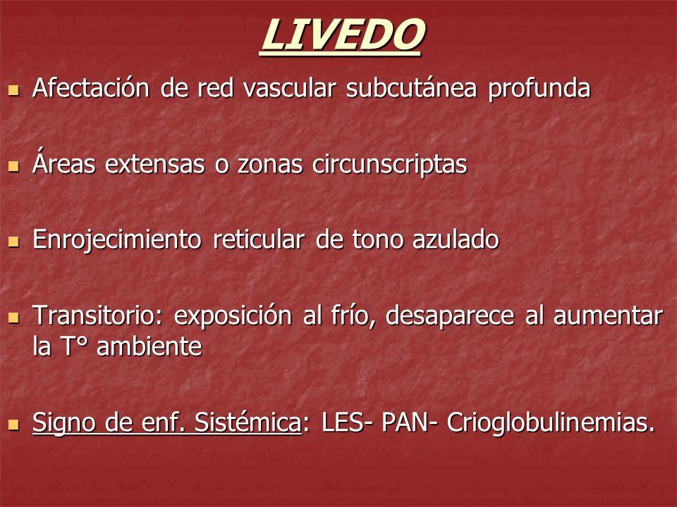 LIVEDO Afectación de red vascular subcutánea profunda