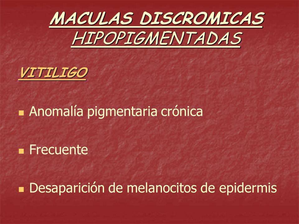 MACULAS DISCROMICAS HIPOPIGMENTADAS