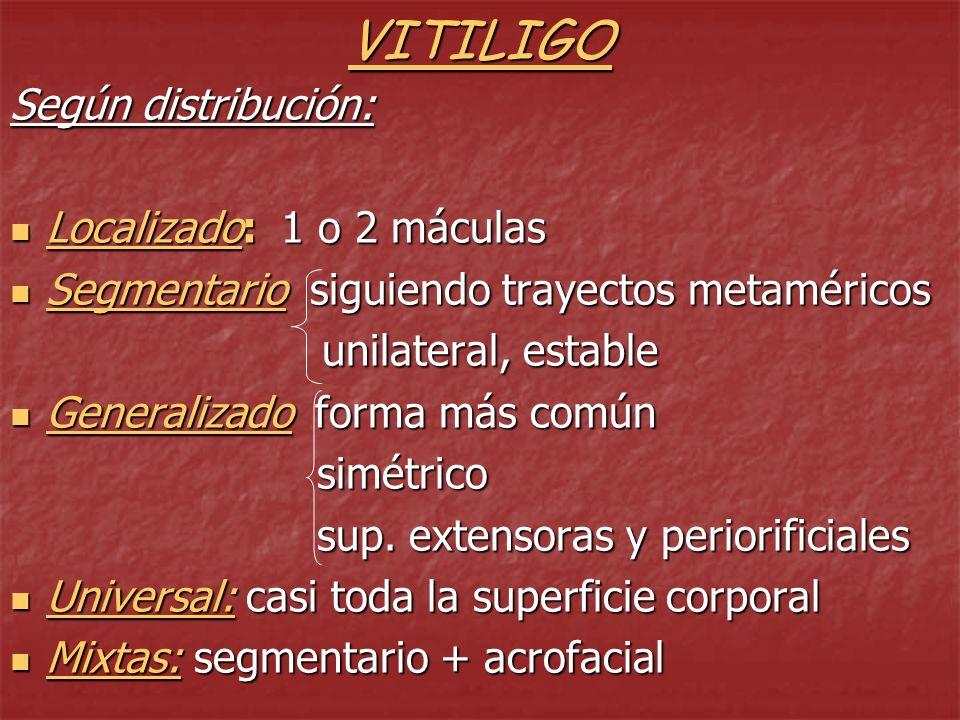 VITILIGO Según distribución: Localizado: 1 o 2 máculas