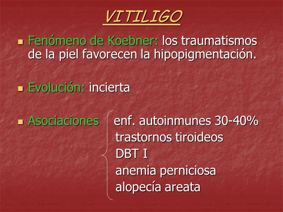 VITILIGO Fenómeno de Koebner: los traumatismos de la piel favorecen la hipopigmentación. Evolución: incierta.