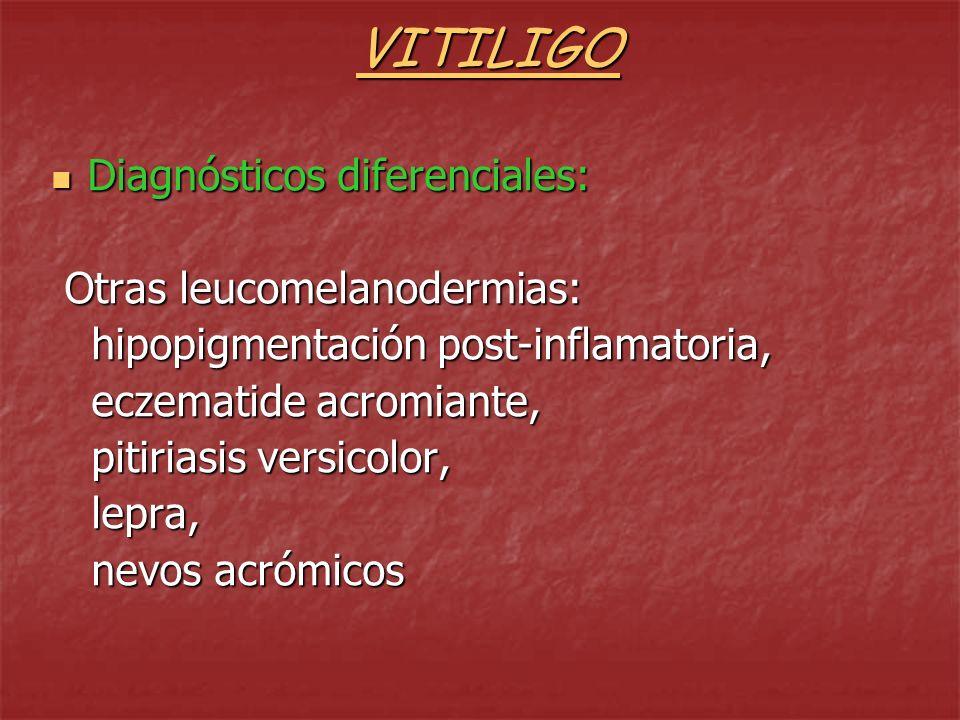 VITILIGO Diagnósticos diferenciales: Otras leucomelanodermias: