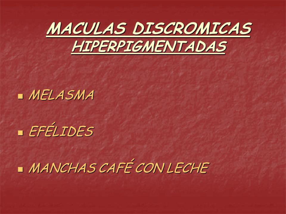 MACULAS DISCROMICAS HIPERPIGMENTADAS