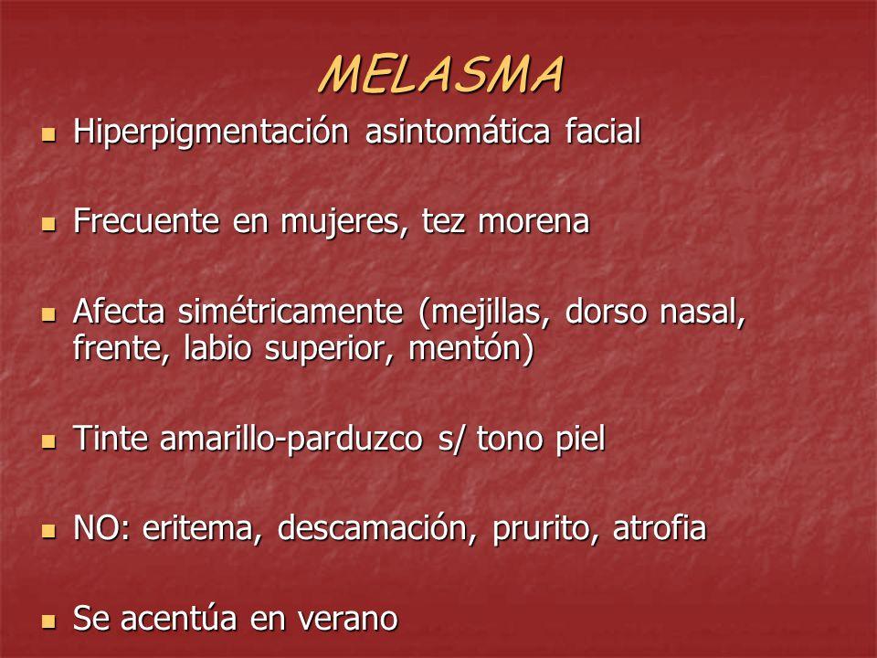 MELASMA Hiperpigmentación asintomática facial