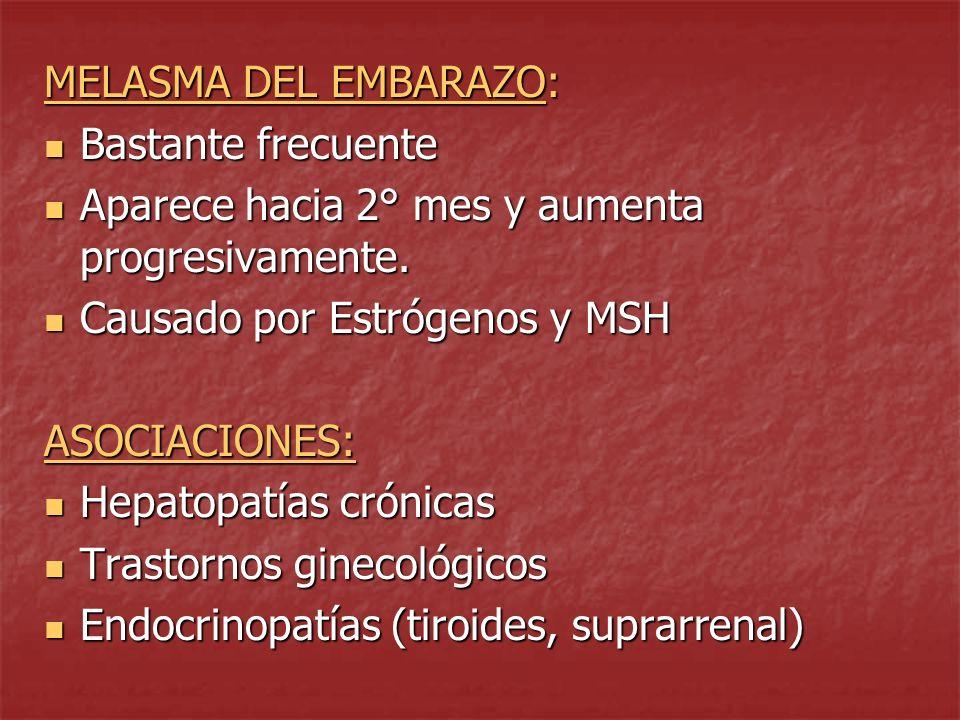 MELASMA DEL EMBARAZO: Bastante frecuente. Aparece hacia 2° mes y aumenta progresivamente. Causado por Estrógenos y MSH.