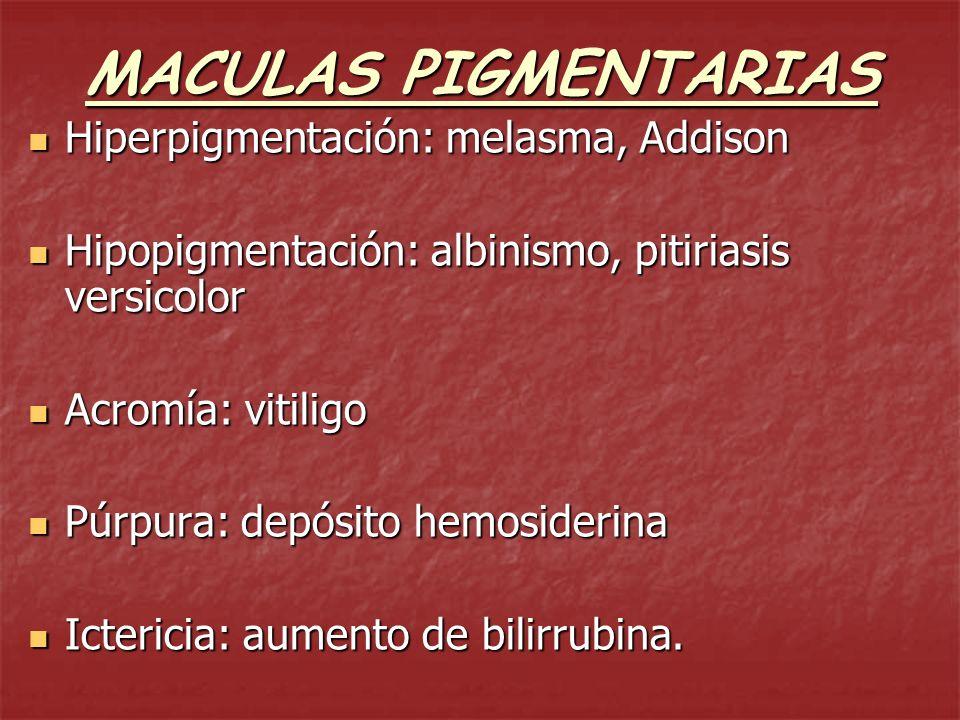 MACULAS PIGMENTARIAS Hiperpigmentación: melasma, Addison