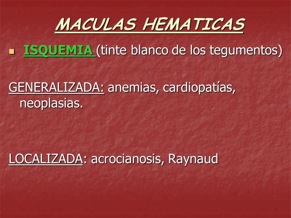 MACULAS HEMATICAS ISQUEMIA (tinte blanco de los tegumentos)