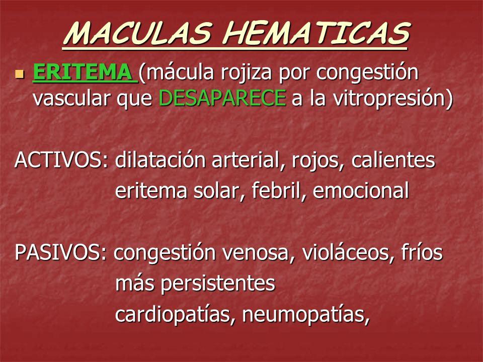 MACULAS HEMATICAS ERITEMA (mácula rojiza por congestión vascular que DESAPARECE a la vitropresión) ACTIVOS: dilatación arterial, rojos, calientes.