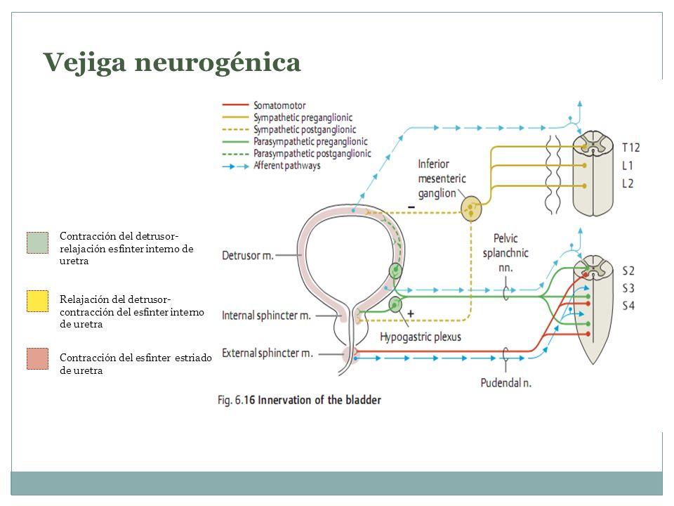 Vejiga neurogénica Contracción del detrusor- relajación esfinter interno de uretra.