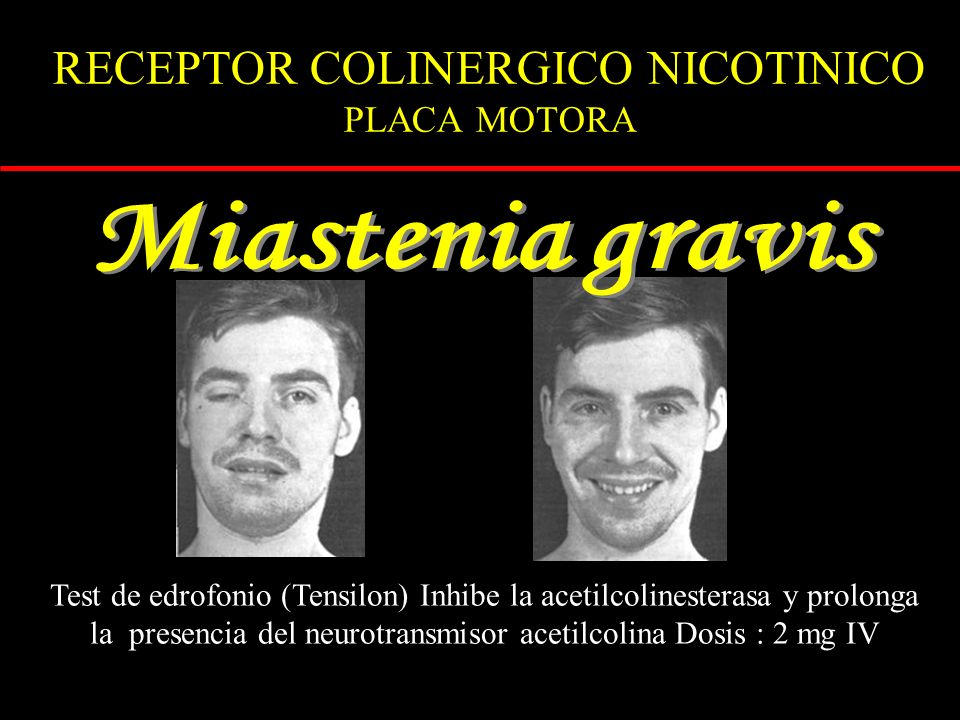 RECEPTOR COLINERGICO NICOTINICO PLACA MOTORA