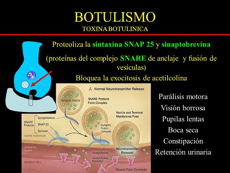 BOTULISMO TOXINA BOTULINICA